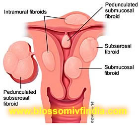 Fibroids and Pregnancy