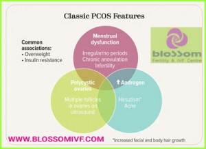 Early diagnosis of PCOS helps treating Infertility